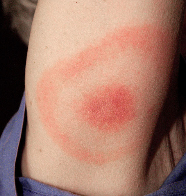 Not Everyone With Lyme Disease Develops A Rash